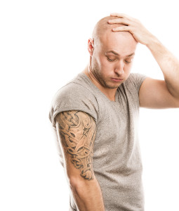 bay area tattoo removal